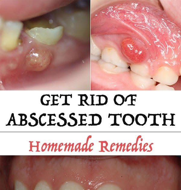 How To Get Rid Of Abscessed Tooth
