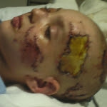 Frankie Injury Photo