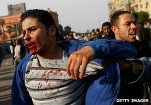 An injured protester is led away from Cairo's Tahrir Square, 2 February 2011