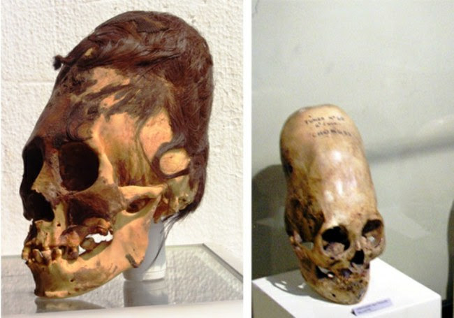 http://www.technologijos.lt/upload/image/n/mokslas/istorija_ir_archeologija/S-56239/2-1-paracas-elongated-skulls-were-they-human.jpg