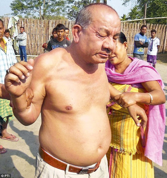 Shameless: Congress leader Bikram Singh Brahma was stripped and beaten before the police took him into custody