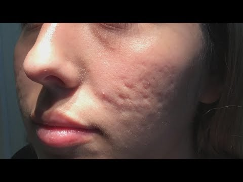 Does This New Procedure Clear up Acne Scars?