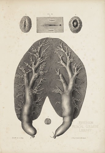 The Mammary Gland of the Porpoise (Cooper, 1840)