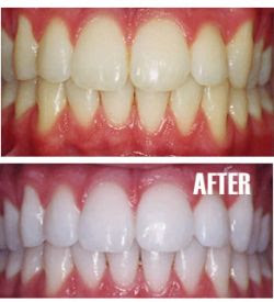 how much does it cost to get teeth whitened professionally