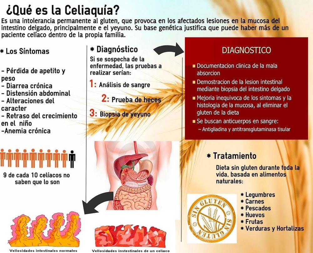 http://www.blogdefarmacia.com/wp-content/uploads/2017/01/celiaquia.jpg