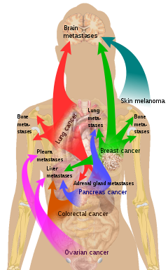 Staffing In Management Essay Metastatic Cancer Meaning In Kannada