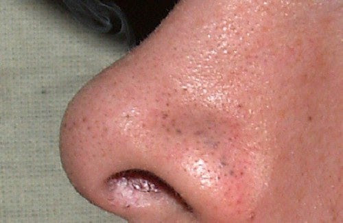 Como eliminar facilmente os cravos do rosto?