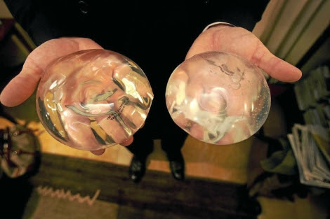 Implante de silicona usado en aumento de pecho. | AFP