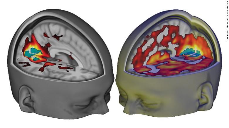 160412121328 brain on lsd exlarge 169