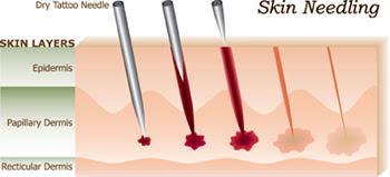 Moles Skin Tags Removal Tania Medispa Ltd