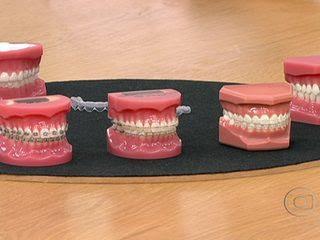 """""""Tratamento com aparelho nos dentes melhora a auto-estima e a saúde"""""""