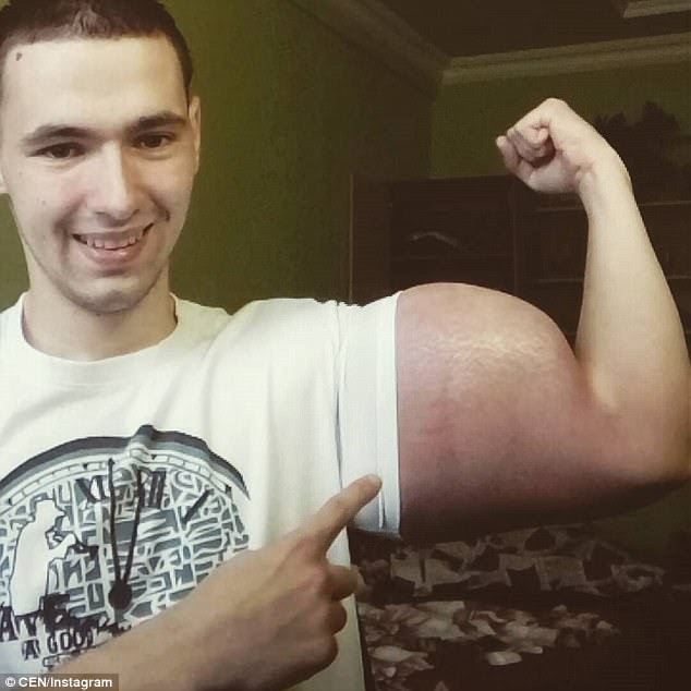 Grotesque: Kirill Tereshin has achieved bulging muscles by injecting himself with synthol