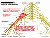 How Is The Brachial Plexus Injury Photos
