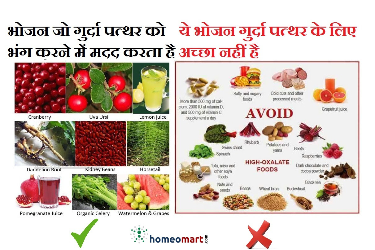 Diet Chart For Kidney Stone Patients In Hindi Pdf Chart Walls