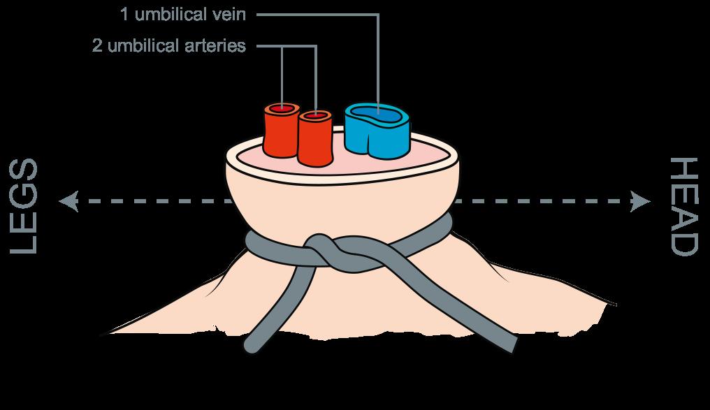 Vasos del cordon umbilical
