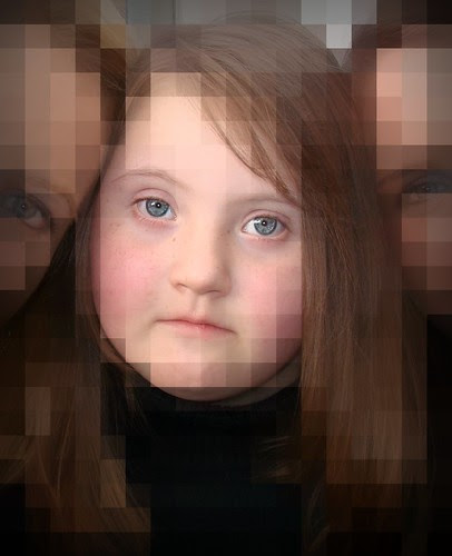 Mosaic Down syndrome