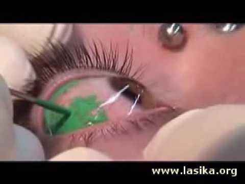 Eye Ball Tattoo [REAL DETAILED VIDEO]. Mar 29, 2009 3:51 PM