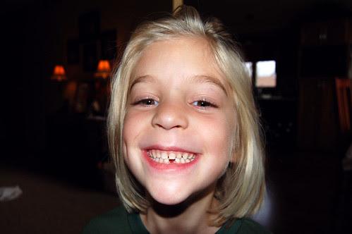 Big Smile! LIttle hole!