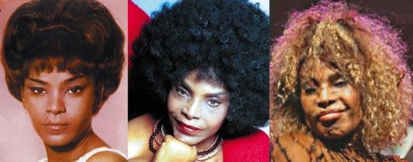 Disastres de cirurgia plástica de celebridades - Elza Soares