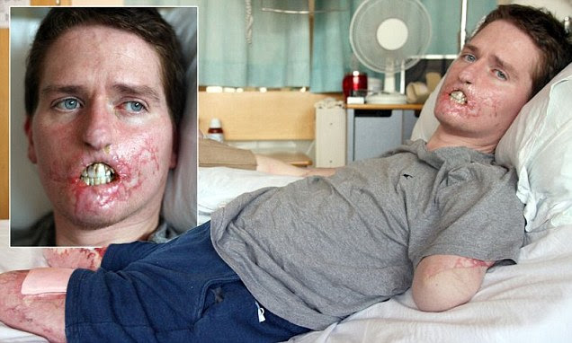 Father-of-one Alex Lewis, 34, thought he had a common cold but was rushed to hospital after his skin turned purple and he found blood in his urine