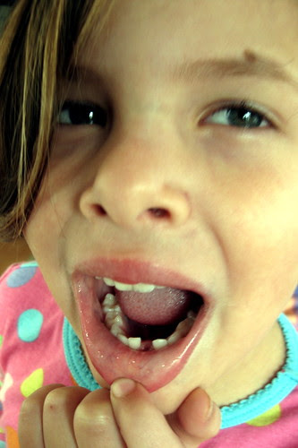 first tooth lost
