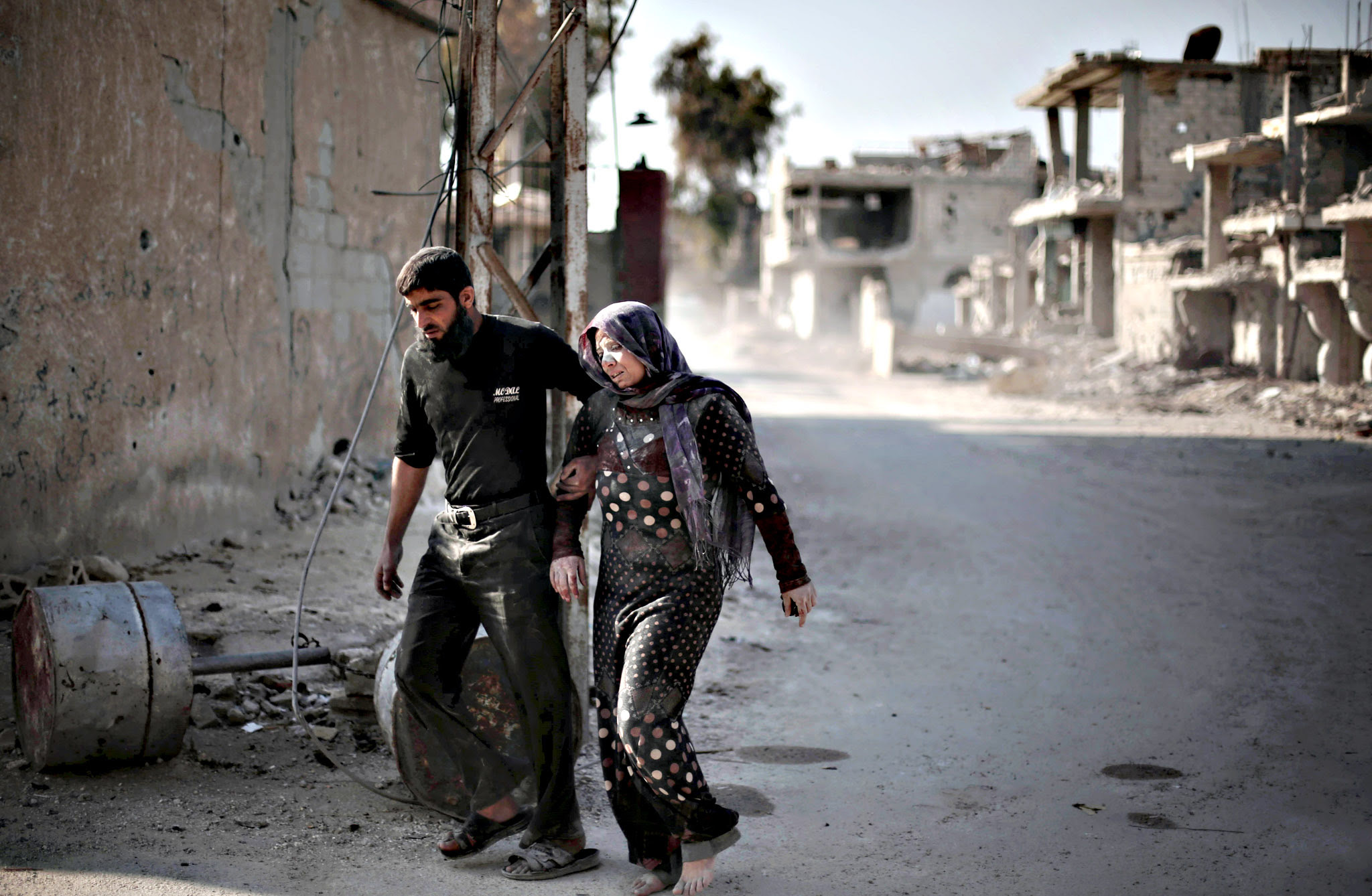 "A Syrian man escorts his injured wife following reported air strikes by regime forces on the town of al-Nashabiyah in the eastern Ghouta region, a rebel stronghold east of the capital Damascus, on December 14, 2015. United Nations aid chief Stephen OBrien said that the ""indiscriminate attacks"" against civilians in Damascus and the surrounding region were ""unacceptable"" at the end of a visit to Syria."