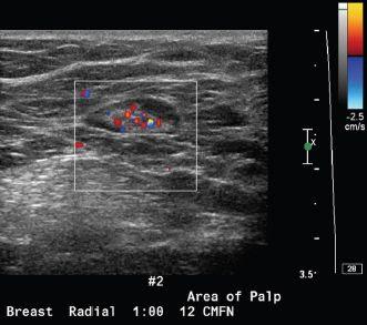 intraductalis papilloma lumpectomia