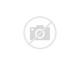 Joint Pain Acute Hiv Images