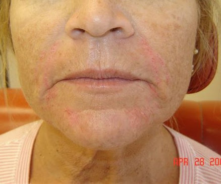 deep frown lines, parallel smile lines, deep nasolabial folds. Dr. Bader injected CosmoDerm I (1 mL) into the nasolabial folds,