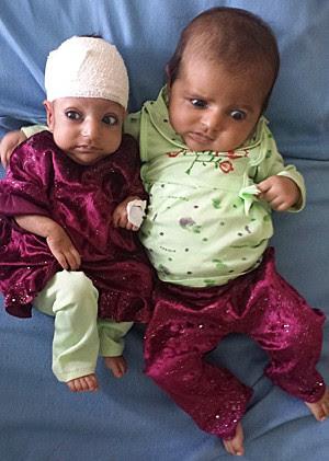 Asree e a irmã gêmea (Foto: STR/AFP)