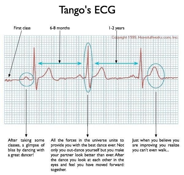 TP ECG.jpg