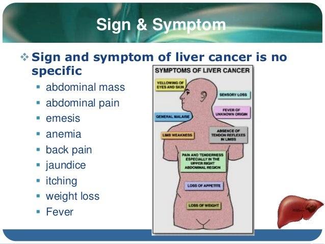 Liver Cancer : Signs, Diagnosis, Treatment | Femaliya! The ...