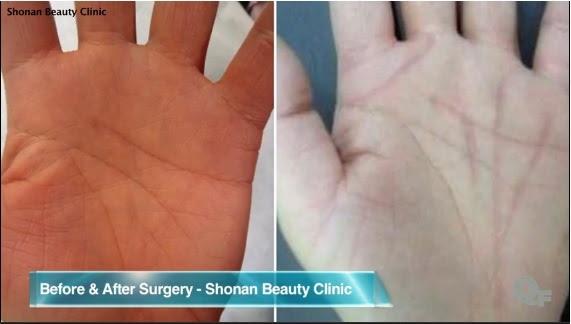 As cirurgias mais inúteis que são modinha