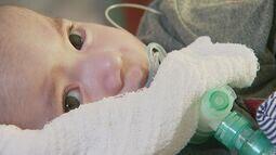 Resultado de imagem para Bebê com doença degenerativa recebe 1ª dose de medicamento milionário