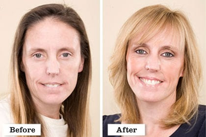 extreme makeover before and after - Hair Style