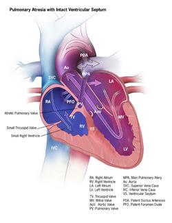 Pulmonary Atresia with Intact Ventricular Septum