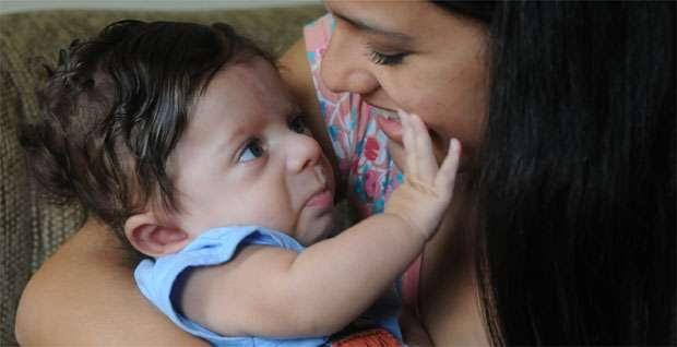 Diagnosticado com a doença depois do nascimento, Miguel Caldeira, de 6 meses, recebe carinho da mãe, Taís, e retribui (Beto Novaes/EM/DA Press)