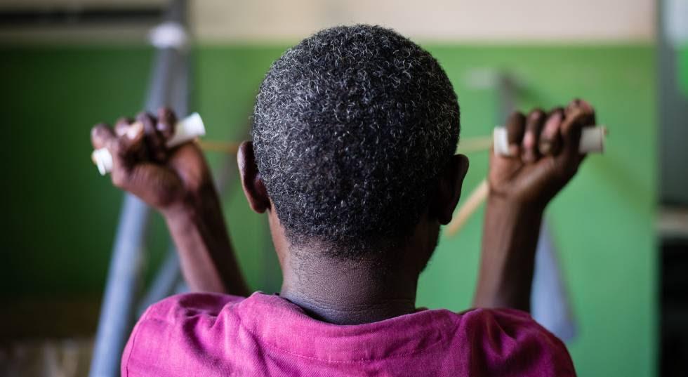 Ibrahim, diagnosticado con lepra, realiza ejercicios de rehabilitación en el hospital de Gambo, en Etiopía.