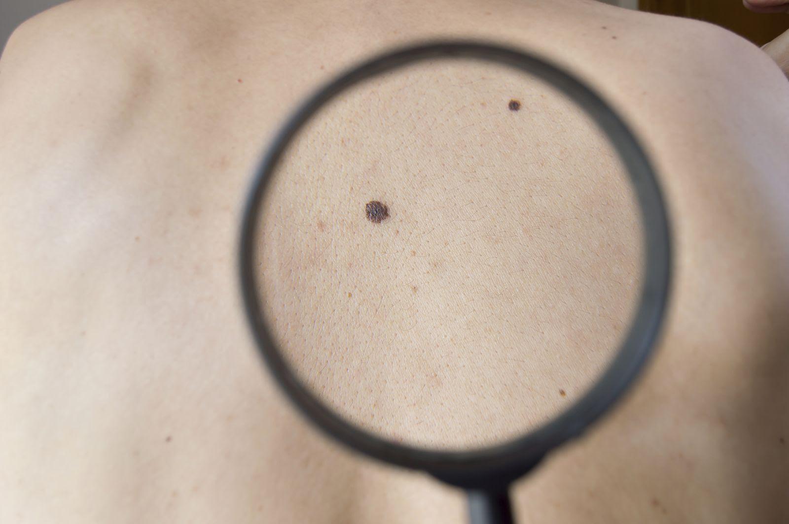 Treating melanoma