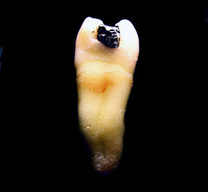 This is a tooth showing a restored premolar