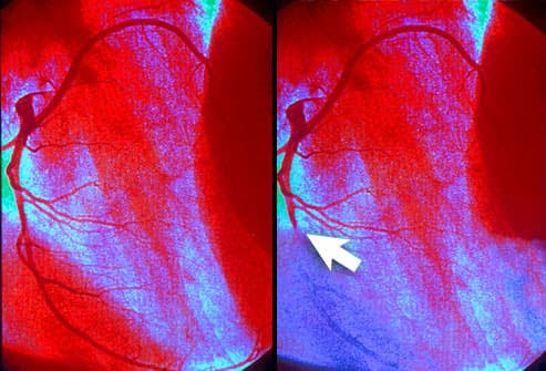 Angiogram showing myocardial infarction