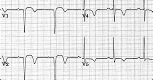 tentang jantung segmen st  penyakit jantung