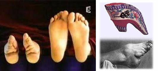 전족을 한 발과 정상적인 발(왼쪽), 전족을 한 발과 신발.