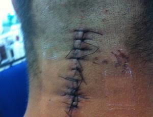Jonathan Souza, atleta de jiu-jítsu, se recupera após perder movimentos em luta (Foto: Arquivo pessoal)