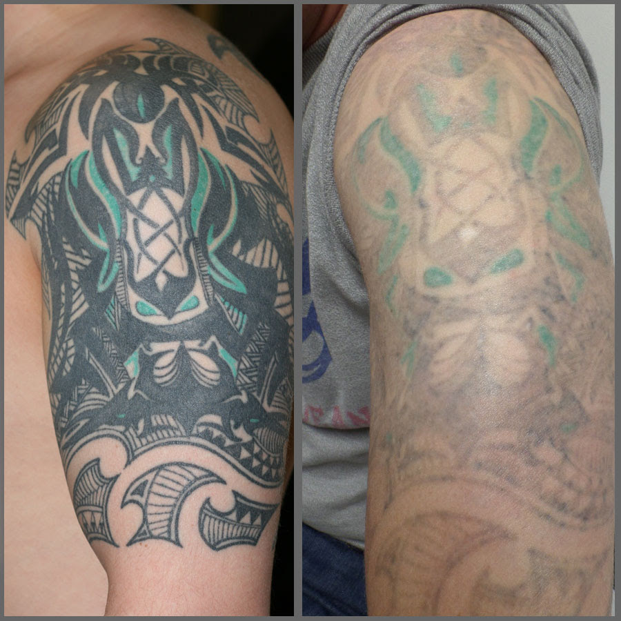 Tattoo Removal Picosure Laser Uk