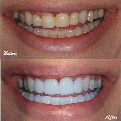 Upper Incisors with failing veneers restored with eMax