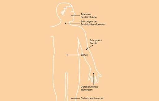 Leberzirrhose Und Gewichtsverlust