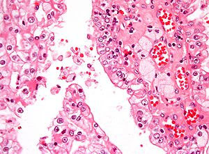 Micrograph of papillary renal cell carcinoma, ...