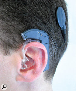 Cochlear implants can sometimes help people overcome profound hearing loss, but experiences such as listening to music can become very confusing.