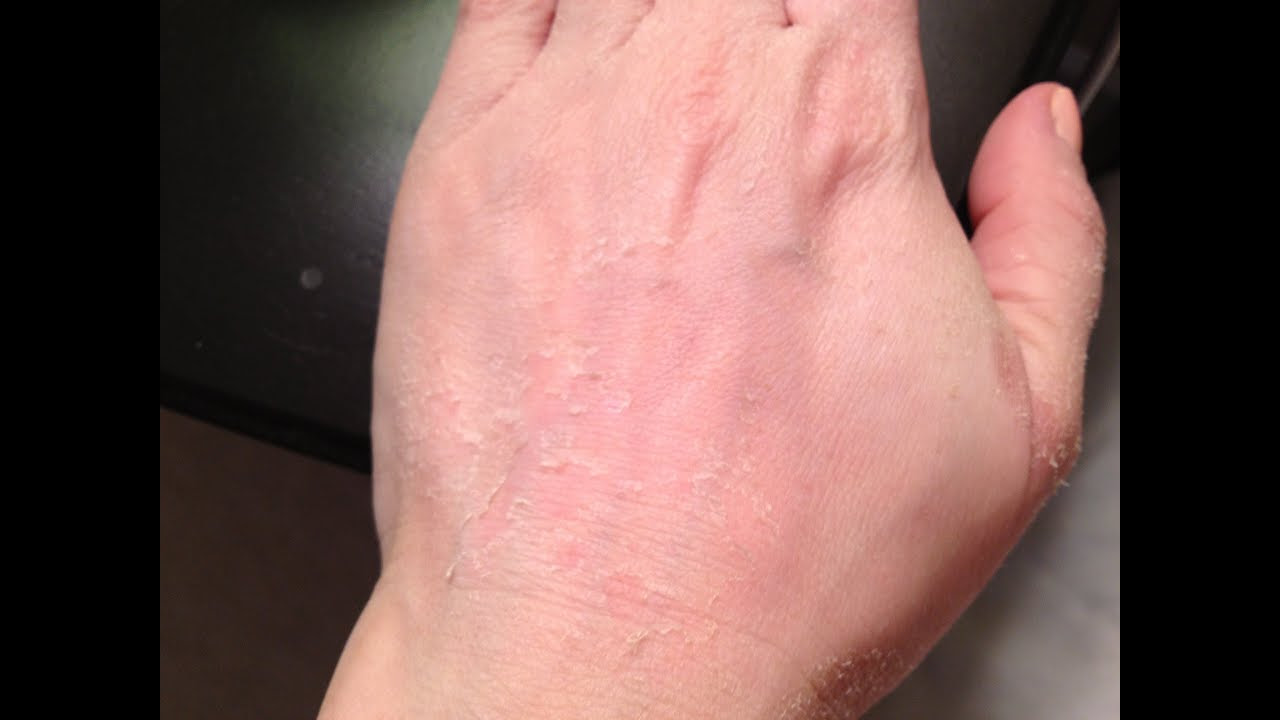TCA Peel on Hands Results - YouTube